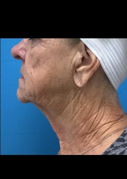 Facelift Gallery - Patient 46618582 - Image 5