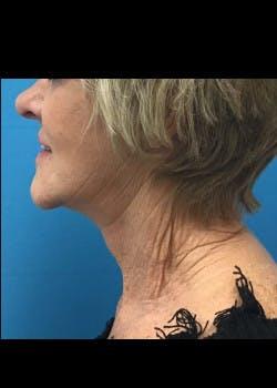 Facelift Gallery - Patient 46618582 - Image 6