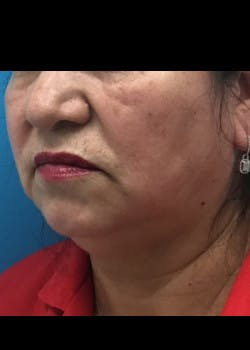 Jaw Contouring Gallery - Patient 46618664 - Image 3