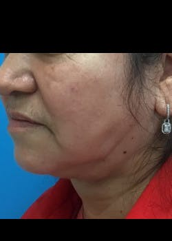 Jaw Contouring Gallery - Patient 46618664 - Image 4