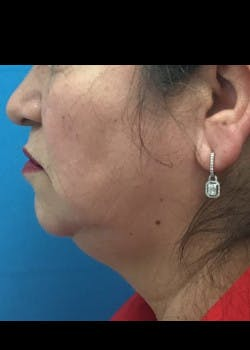 Jaw Contouring Gallery - Patient 46618664 - Image 5