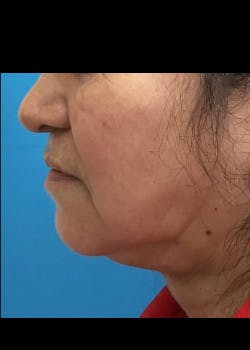 Jaw Contouring Gallery - Patient 46618664 - Image 6