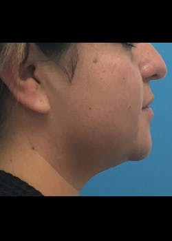 Jaw Contouring Gallery - Patient 46618737 - Image 1