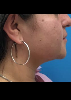 Jaw Contouring Gallery - Patient 46618737 - Image 2