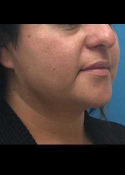 Jaw Contouring Gallery - Patient 46618737 - Image 3