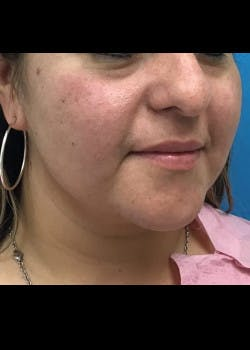Jaw Contouring Gallery - Patient 46618737 - Image 4