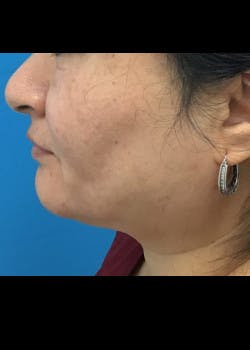 Jaw Contouring Gallery - Patient 46618756 - Image 1