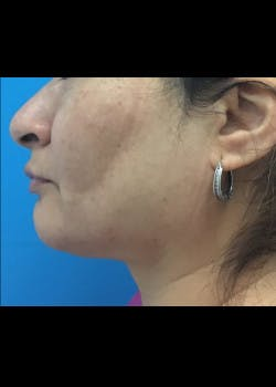 Jaw Contouring Gallery - Patient 46618756 - Image 2