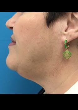 Jaw Contouring Gallery - Patient 46618801 - Image 1