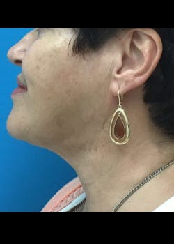 Jaw Contouring Gallery - Patient 46618801 - Image 2
