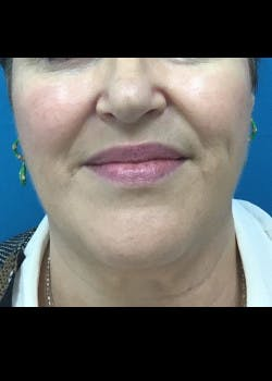 Jaw Contouring Gallery - Patient 46618801 - Image 3