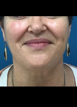 Jaw Contouring Gallery - Patient 46618801 - Image 4
