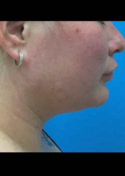 Jaw Contouring Gallery - Patient 46618842 - Image 1
