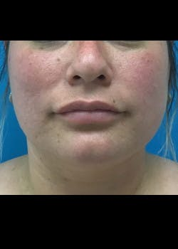 Jaw Contouring Gallery - Patient 46618842 - Image 3