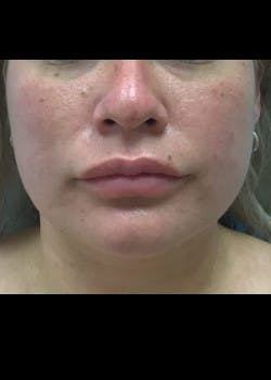Jaw Contouring Gallery - Patient 46618842 - Image 4