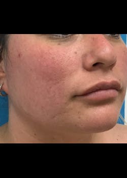 Jaw Contouring Gallery - Patient 46618842 - Image 5
