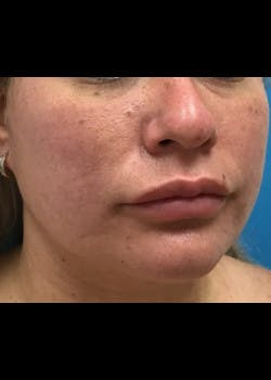 Jaw Contouring Gallery - Patient 46618842 - Image 6