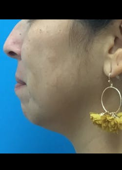 Jaw Contouring Gallery - Patient 46618893 - Image 1