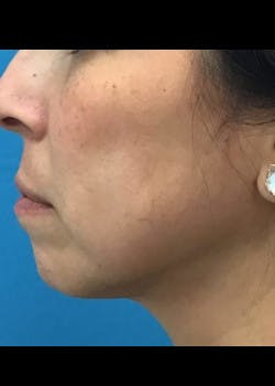 Jaw Contouring Gallery - Patient 46618893 - Image 2