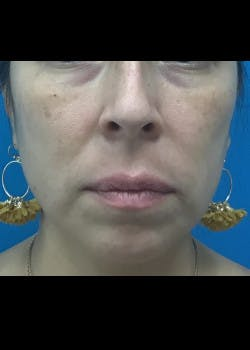 Jaw Contouring Gallery - Patient 46618893 - Image 3