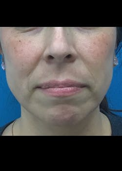Jaw Contouring Gallery - Patient 46618893 - Image 4