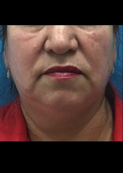 Neck Liposuction Gallery - Patient 46619042 - Image 1