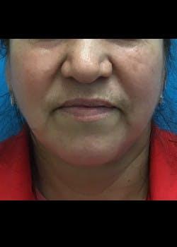 Neck Liposuction Gallery - Patient 46619042 - Image 2