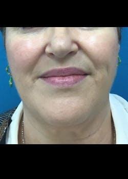 Neck Liposuction Gallery - Patient 46619098 - Image 3