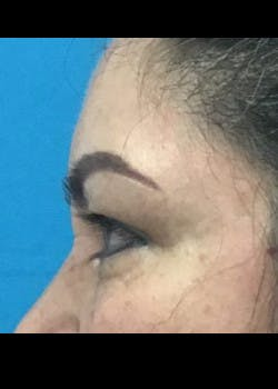 Eyelid Surgery Gallery - Patient 46619594 - Image 3