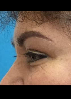 Eyelid Surgery Gallery - Patient 46619594 - Image 4