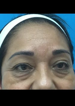 Eyelid Surgery Gallery - Patient 46619621 - Image 1