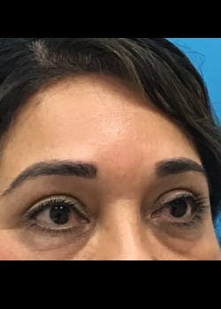 Eyelid Surgery Gallery - Patient 46619621 - Image 2