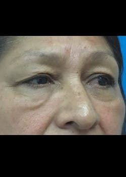 Fillers Gallery - Patient 46619790 - Image 1