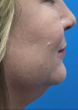 Fillers Gallery - Patient 46619870 - Image 1
