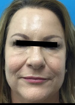 Fillers Gallery - Patient 46619870 - Image 3