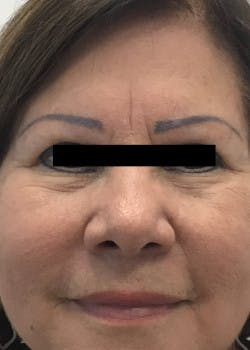Fillers Gallery - Patient 46619906 - Image 1
