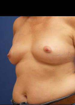 Breast Reconstruction Gallery - Patient 46620046 - Image 1