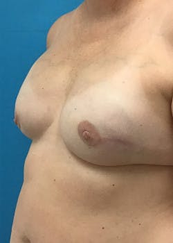 Breast Reconstruction Gallery - Patient 46620046 - Image 2