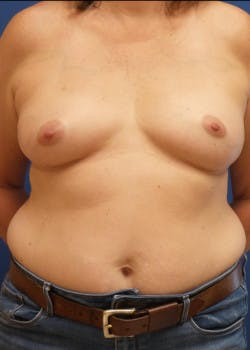 Breast Reconstruction Gallery - Patient 46620046 - Image 3