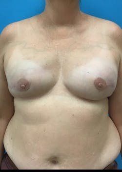 Breast Reconstruction Gallery - Patient 46620046 - Image 4