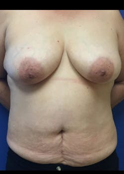 Breast Reconstruction Gallery - Patient 46620086 - Image 1