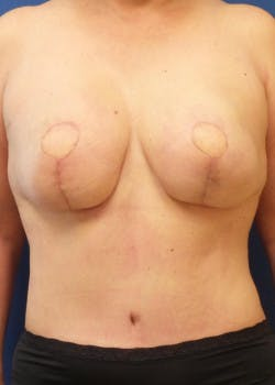 Breast Reconstruction Gallery - Patient 46620086 - Image 2
