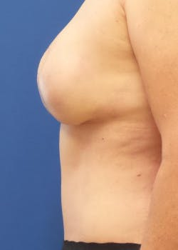 Breast Reconstruction Gallery - Patient 46620086 - Image 4