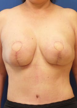 Breast Reconstruction Gallery - Patient 46620086 - Image 5