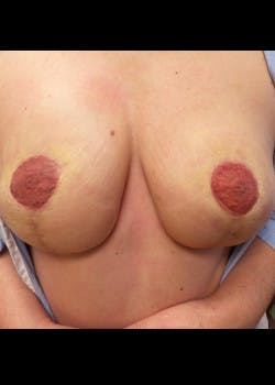 Breast Reconstruction Gallery - Patient 46620086 - Image 6