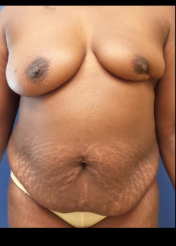 Breast Reconstruction Gallery - Patient 46620120 - Image 1