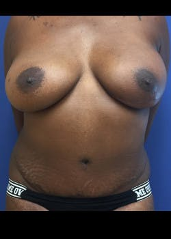 Breast Reconstruction Gallery - Patient 46620120 - Image 2
