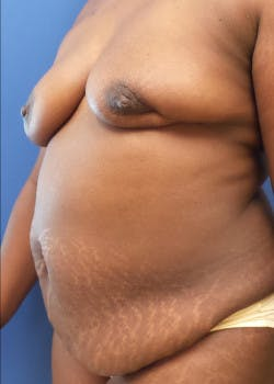 Breast Reconstruction Gallery - Patient 46620120 - Image 3