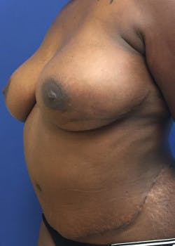 Breast Reconstruction Gallery - Patient 46620120 - Image 4