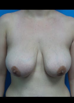 Breast Lift Gallery - Patient 46620236 - Image 1